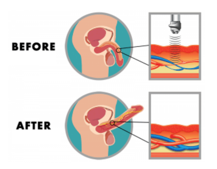 Acoustic Wave Therapy- Before and After